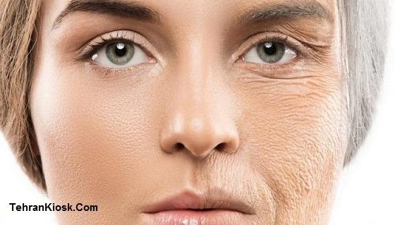 گیاهی موثر در رفع چین و چروک صورت + استفاده از رازیانه در درمان چین و چروک